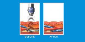 Erectile Dysfunction Treatment Without Surgery